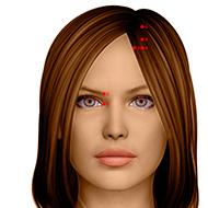 BL01 Bladder Meridian Acupuncture Point - Dermal / Skin level.