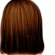 BL09 Bladder Meridian Acupuncture Point - Dermal / Skin level.