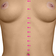 CV14 Conception Vessel Meridian Acupuncture Point - Dermal / Skin level.