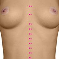 CV15 Conception Vessel Meridian Acupuncture Point - Dermal / Skin level.