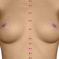 CV17 Conception Vessel Meridian Acupuncture Point - Dermal / Skin level.