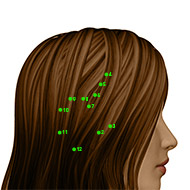 GB06 Gallbladder Meridian Acupuncture Point - Dermal / Skin level.