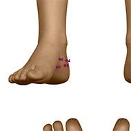 KD05 Kidney Meridian Acupuncture Point - Dermal / Skin level.