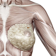 PC01 Pericardium Meridian Acupuncture Point - Muscular / Muscle level.