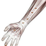 PC07 Pericardium Meridian Acupuncture Point - Muscular / Muscle level.