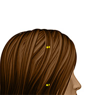 ST08 Stomach Meridian Acupuncture Point - Dermal / Skin level.